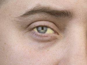 The yellow color of the male eye. Symptom of jaundice, hepatitis or problems with the gall bladder, gastrointestinal tract, liver.
