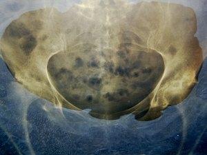 An X-ray, hip pain, walking