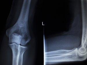 X-ray orthopedics Traumatology scan of elbow joint injury