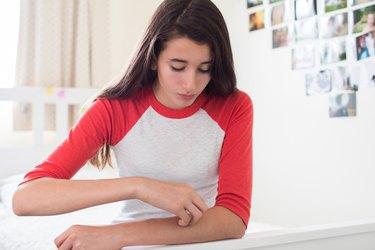 Teenage Girl Sitting In Bedroom Scratching Arm