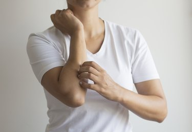 Woman with itchy skin.