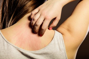 closeup of woman scratching her back after taking vitamin D