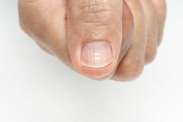 White spots and Vertical ridges on the fingernails symptoms