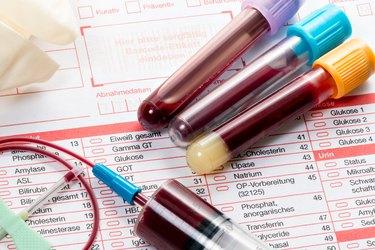 Blood test, blood samples on a laboratory form