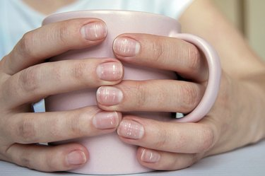 Many white spots on a woman's nails (Leukonychia) due to calcium deficit or stress