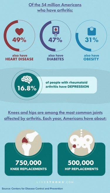 Arthritis complications and comorbidities data graphic