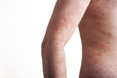 Psoriasis on the body