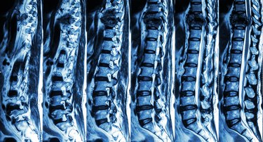 fracture of thoracic spine and compress spinal cord