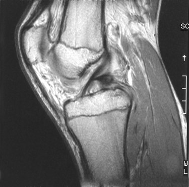 Scan of a human knee