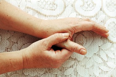 A woman's hands with painful arthritis