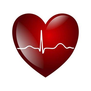 heart electrocardiogramm