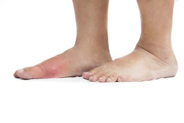 Asian with his right foot inflamed due to gout.
