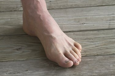 Male Foot With Prominant Veins