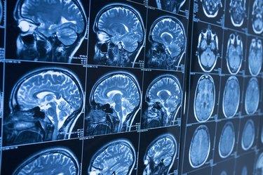 Head x-ray, brain in MRI