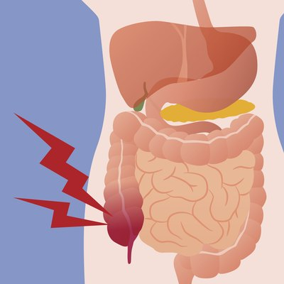 Early Onset Appendicitis Symptoms