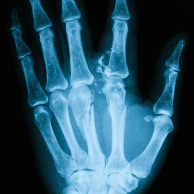 X-ray image of broken hand, PA view.