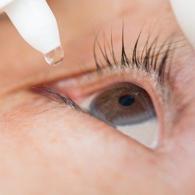 Conjunctivitis in the eye women
