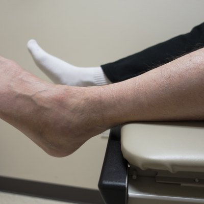 Broken Foot, Sprained Ankle, Fractured Bone in Doctor's Exam Room