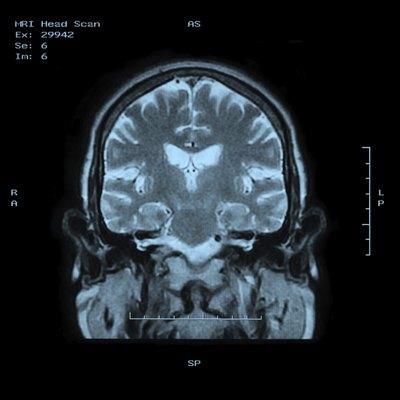 MRI Head Scan Back view