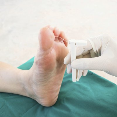 diabatic foot skining neuropathy