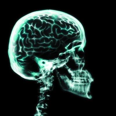X-ray of brain in skull