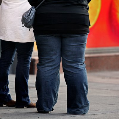 Scottish Government Annouce Plans To Deal With The Time Bomb Of Obesity