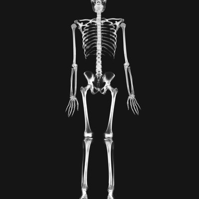 x-ray image of the full skeletal system of a person standing