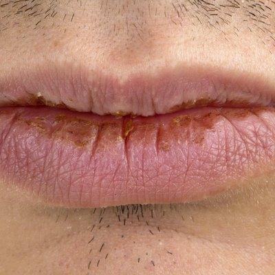 Manifestation of herpes