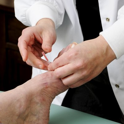 Acupuncture needle Being Applied to a Foot