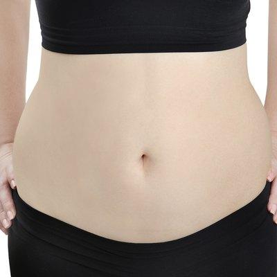 Woman before diet
