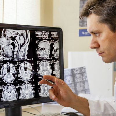 Doctor examining an MRI scan of the Brain
