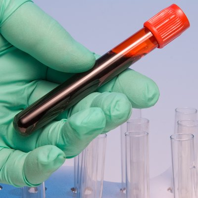Green gloved hand holding blood sample in test tube