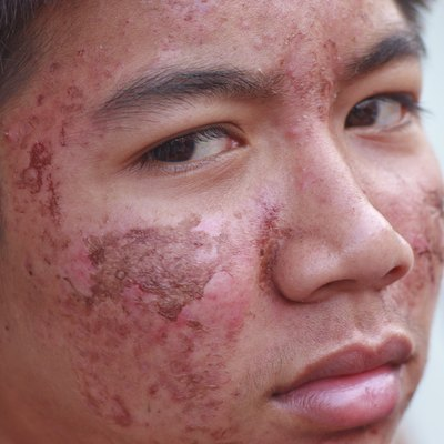 Male ace with acne problem skin