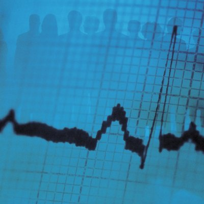 Silhouette of businesspeople on ekg printout with heartbeat