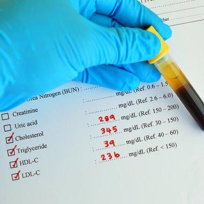 High lipid profile result