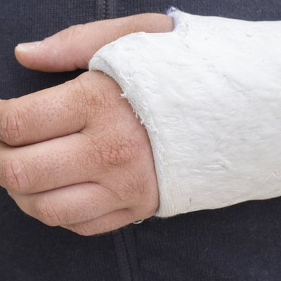Man with his broken arm. Arm in cast.