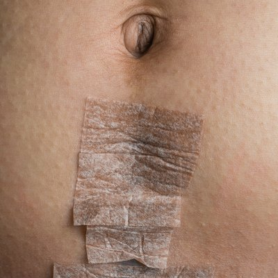 Cesarean Section Scar covered with Medical Tape