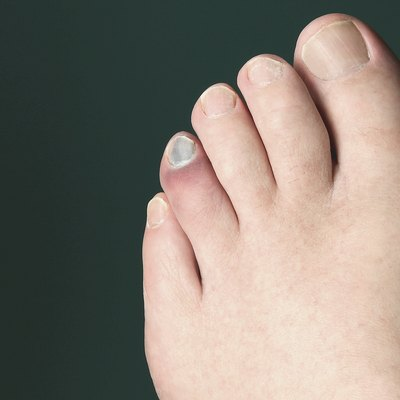 OUCH!  I stubbed my toe!
