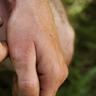 Bee sting on hand