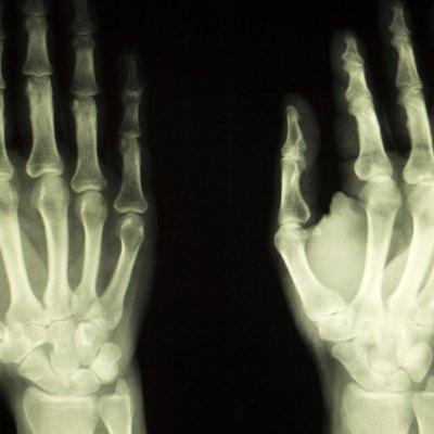 Hand finger thumb hospital xray scan