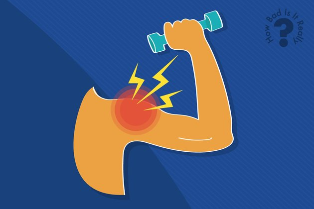 Graphic of a sore arm muscle doing a biceps curl