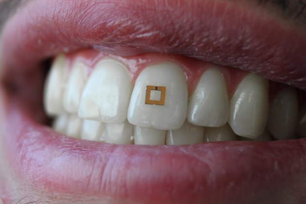 closeup of mouth and teeth with tooth fitbit