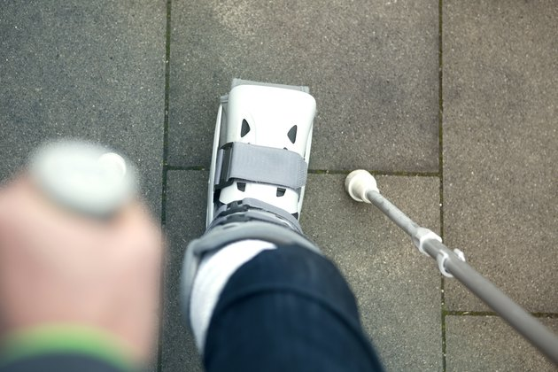closeup of person walking with cast on foot