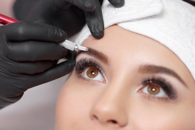 Medical Reasons for Eyebrow Loss