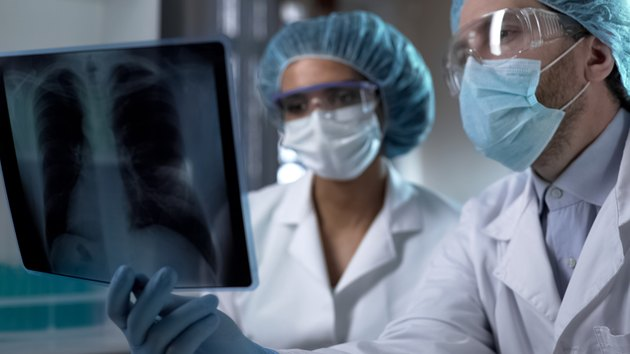 Doctors studying x-ray of lungs in lab, analyzing and discussing diagnosis