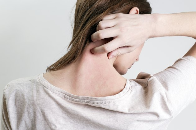 Close up view of woman scratching her neck due to allergies