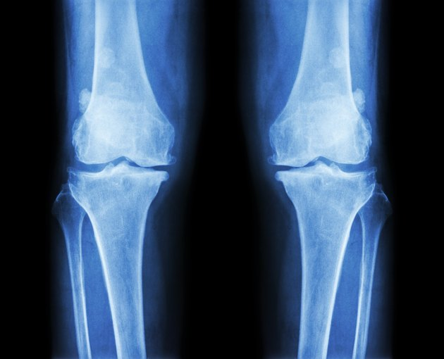 Osteoarthritis both knee