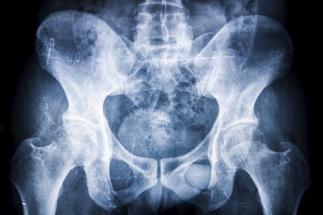 hip xray:fankylosing spondylitis (AS) in sacroiliac articulation