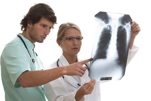 Pulmonologist and surgeon watching x-ray