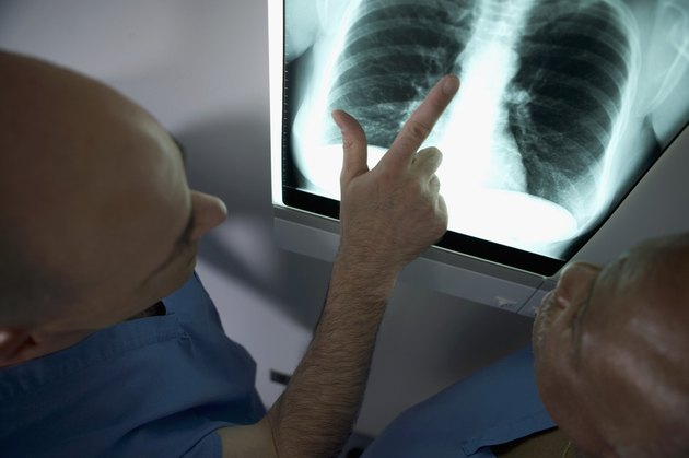 High angle view of two doctors looking at x-ray